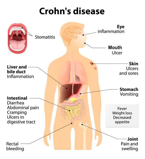 diagram of Crohn's disease symptoms