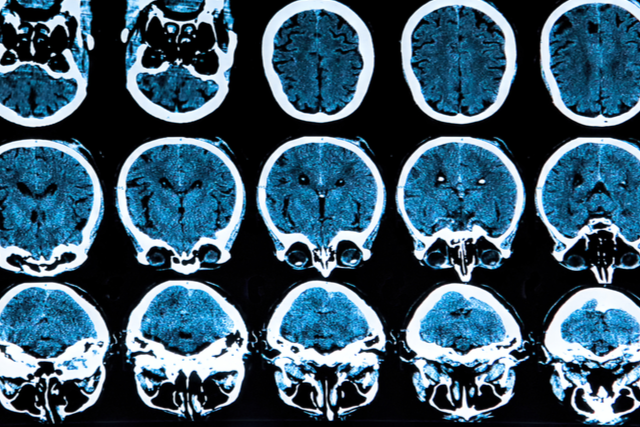 image from a computerized tomography of the brain and skull sections