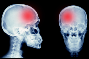 Xray of the human head in front and side views showing a reddish shade in the right frontal area
