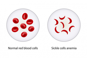 A graphical comparison of healthy blood cells & cells with sickle cell anemia shown side-by-side