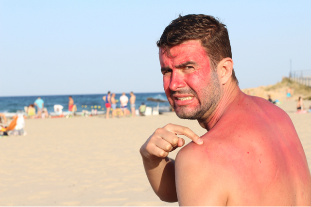 Shirtless man points at his sunburnt back while on the beach